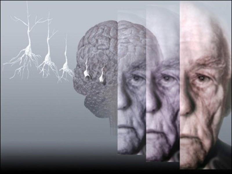 Curso de Alzheimer  -  Não percam
